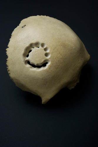 <p>Trephined piece of skull. [Wellcome Library, London]</p>