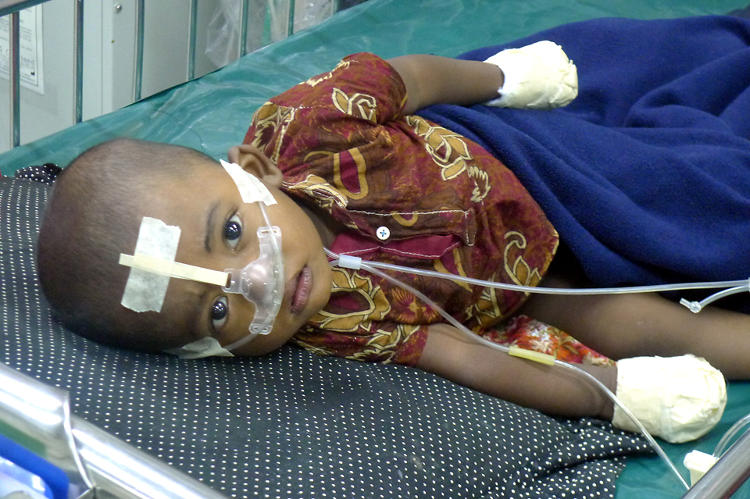 <p>Hiridoi, one of the first children to receive Bubble CPAP through AdaptAir.</p>