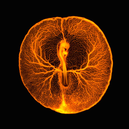 <p>This fluorescence micrograph shows the vascular system of a developing chicken embryo, two days after fertilization. Injecting fluorescent dextran revealed the entire vasculature used by the embryo to feed itself from the rich yolk inside the egg.</p>
