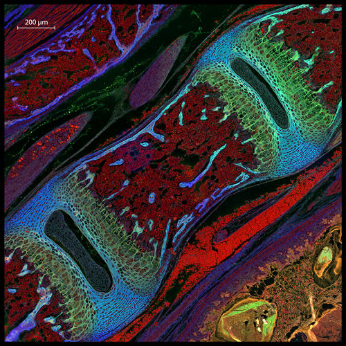 <p>Mouse vertebra section</p>  <p>Dr. Michael Paul Nelson and Samantha Smith<br /> 13th Place<br /> Department of Pathology/Neuropathology, University of Alabama at Birmingham<br /> Birmingham, Alabama, USA<br /> Focus Stacking<br /> 200X</p>