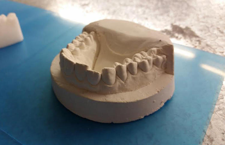 <p>It turns out that a dentist isn't just taking a mold of your teeth and using it to make a retainer.</p>